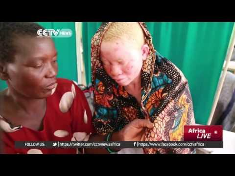 Tanzania Fair Showcases Work By Blind Artists To Raise Awareness