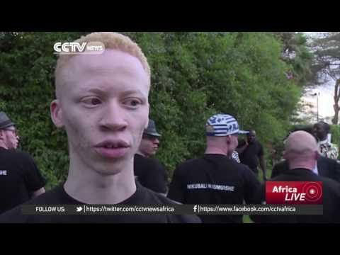 Kenya Fights 'deadly' Stigma With Albino Beauty Pageant