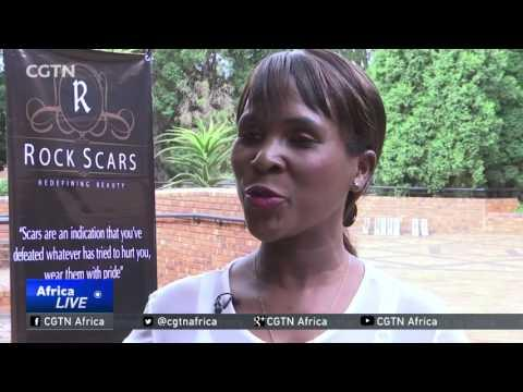 South African Urges People Not To Hide Their Scars, Blemishes