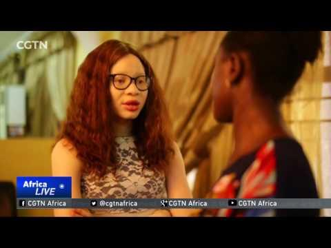More Awareness Needed To Help Albinos Fight Stigma