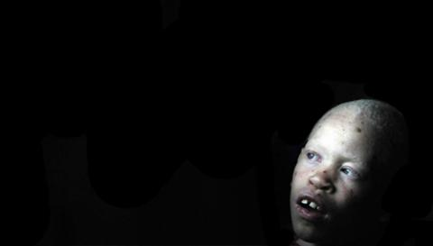 Albino Killings in Africa